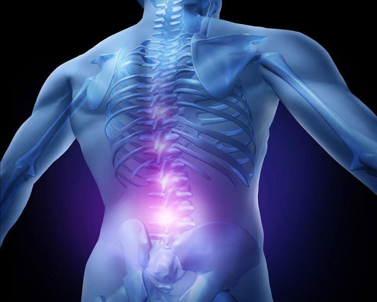 chronische Rückenschmerzen